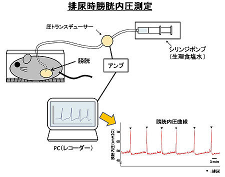 排尿時膀胱内圧測定